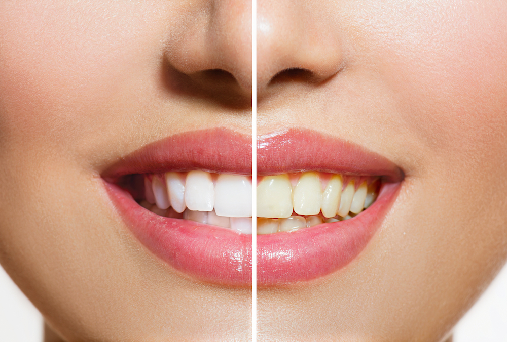 Stained Teeth | Storm Lake Dentist